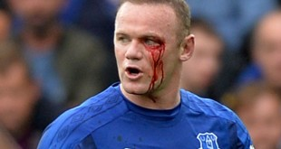 rooney injury